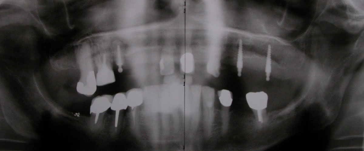 Die provisorischen Implantate