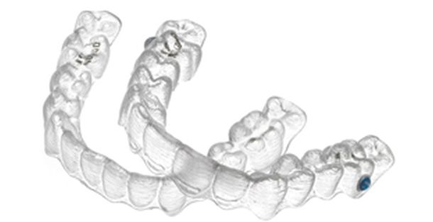Ansicht 2 - Invisalign Zahnspange