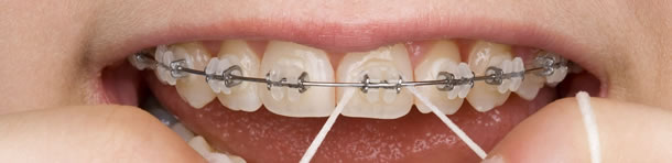 Zahnspange festsitzend Brackets, Dentalhygiene