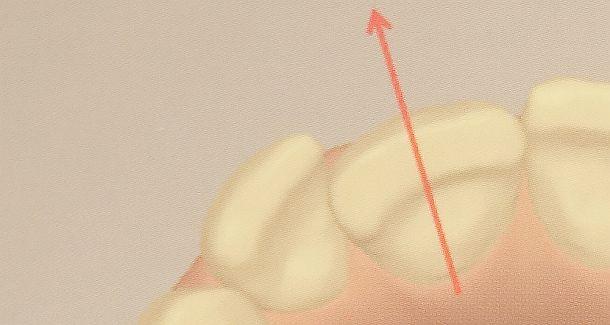 Gründe für schlechte Zahnstellungskorrektur