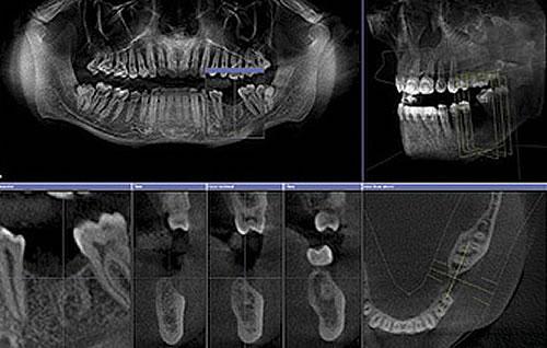 3D-Zahnheilkunde dank dem DVT (Digitales Volumentomograph)
