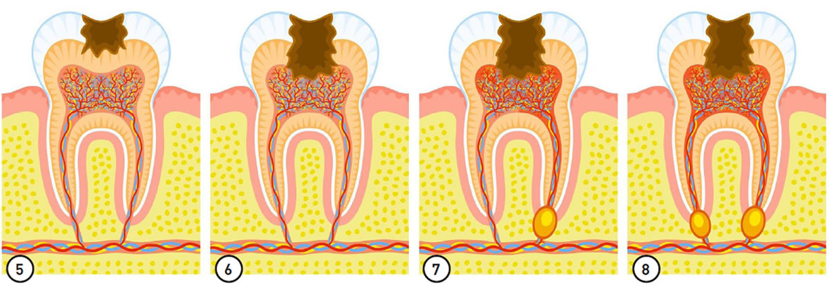 Diagnose der Karies - Bild5 bis 8