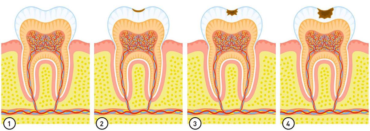 Diagnose der Karies - Bild1 bis 4
