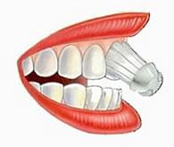 Zahnarzt Aarau erklärt das Zähneputzen