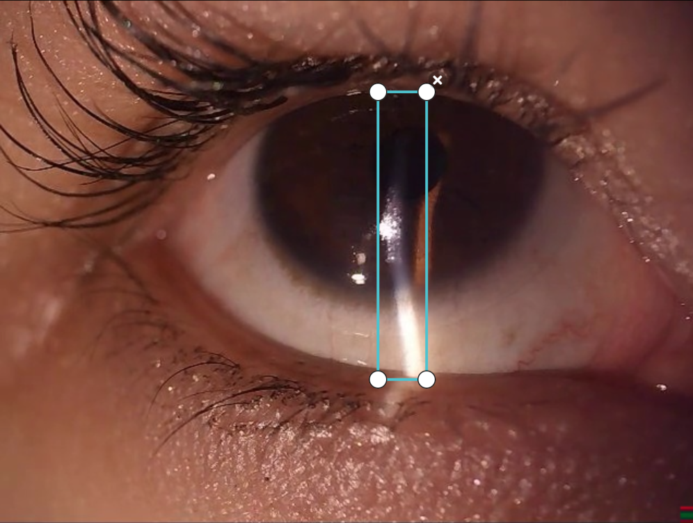 ocular eye labeling