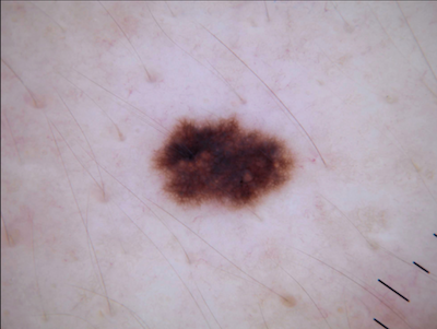 msk skin lesion