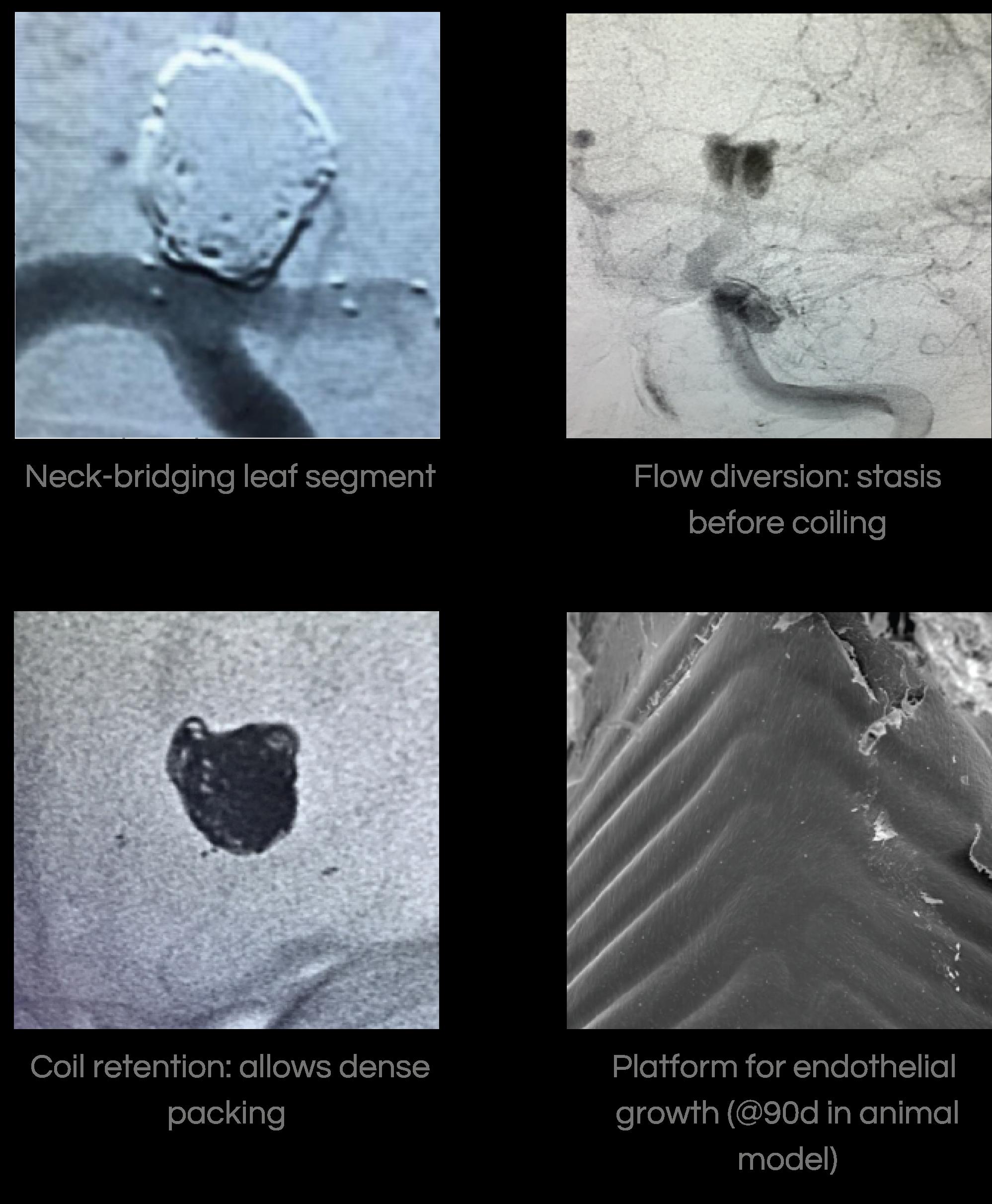 Four images showing neck-bridging leaf segment, coil retention, flow diversion. and platform for endothelial growth.