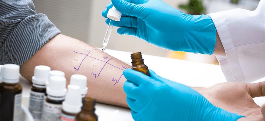 Skin prick test at Cumberland Valley ENT