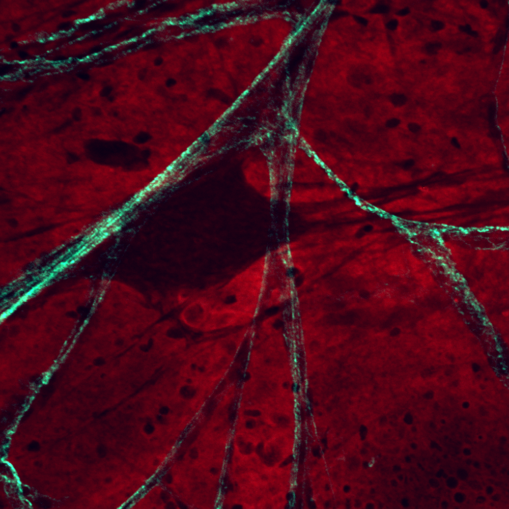 Stained healthy neural tissue cryosection, 16x, NA 0.8