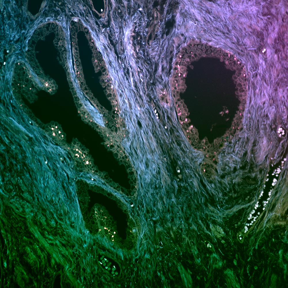 Stitched image of unstained prostate cryosection, 16x, NA 0.9