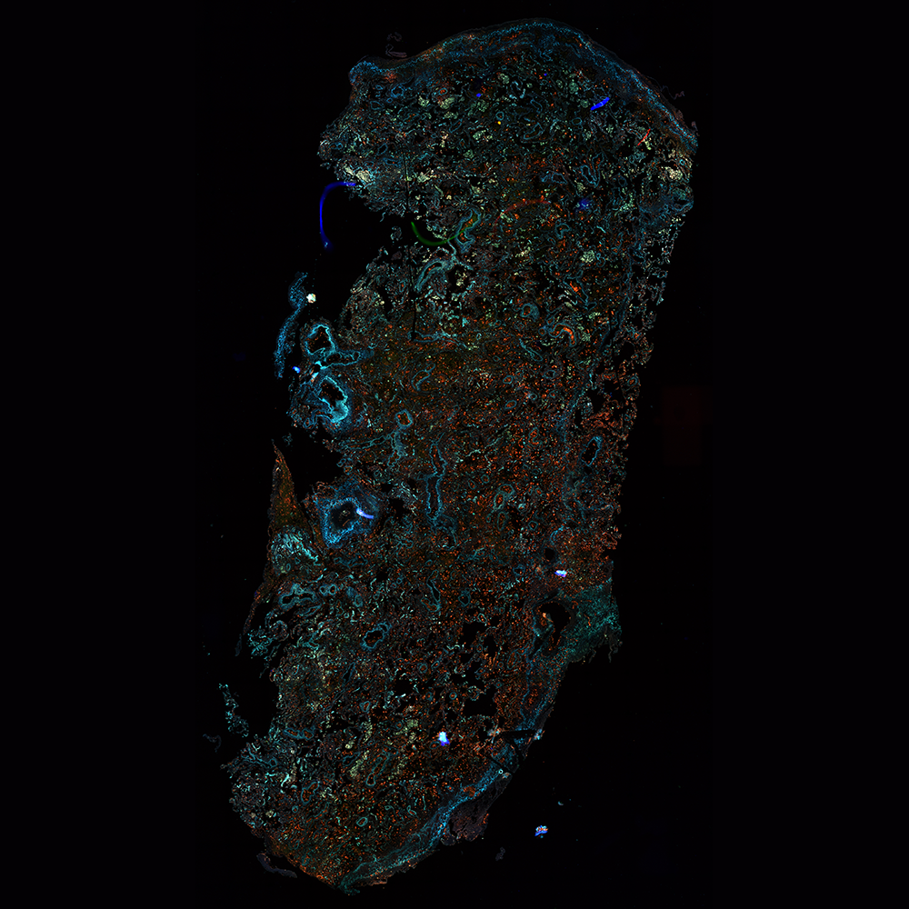 Stitched single-photon image of an unstained healthy human lung cryosection (16x, 0.8 NA, 11.3 x 7 mm) - overlay of 432 nm (blue), 515 nm (green) and 681 nm (red).