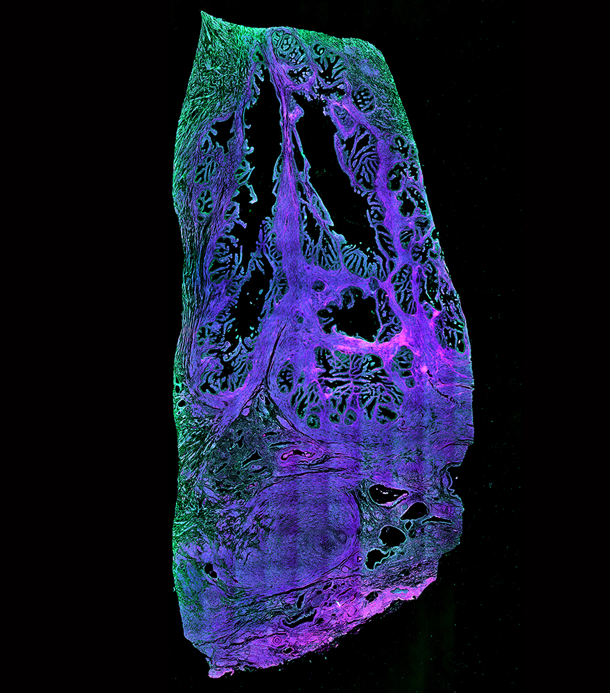 Stitched image of unstained cryosection of cancerous human prostate tissue (single-photon setup; 16x, 0.8 NA, 5000 x 11700 µm) - overlay of 395 nm (magenta), 475 nm (blue) and 555 nm (green).