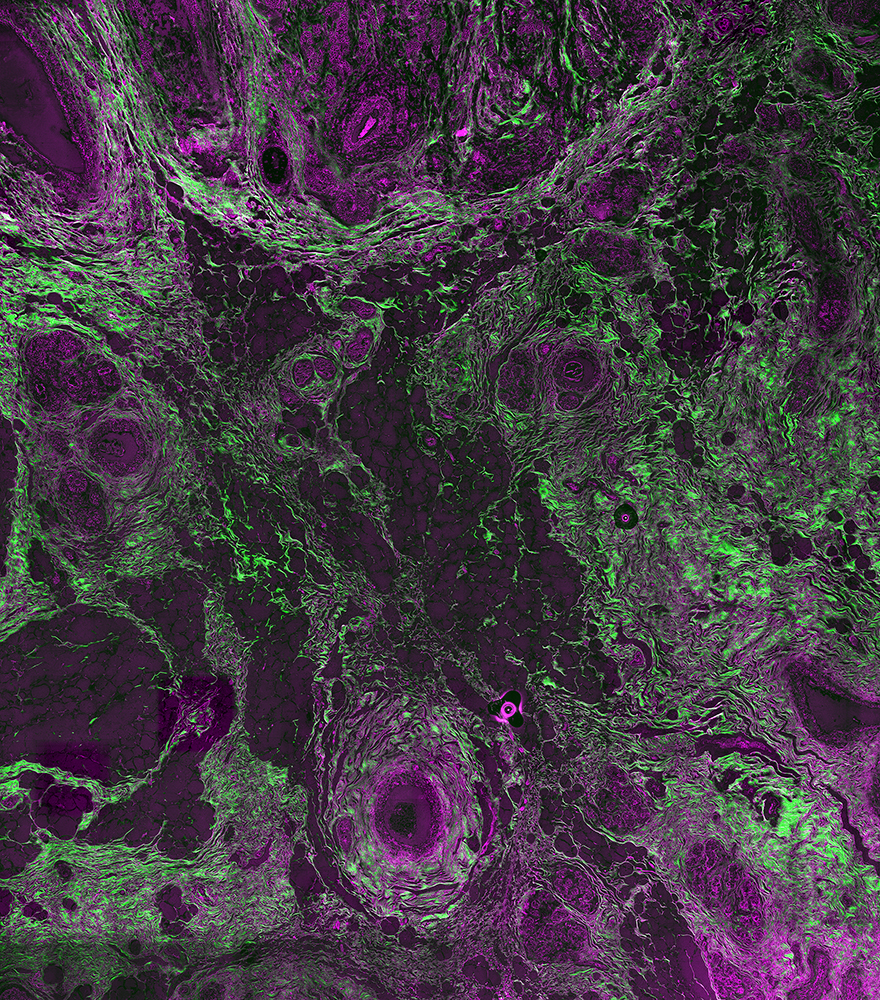 Unstained cryosection of cancerous human breast tissue (multi-photon setup; 4800 µm) - overlay of SHG-515 nm (green) and 2P-542 nm (red).