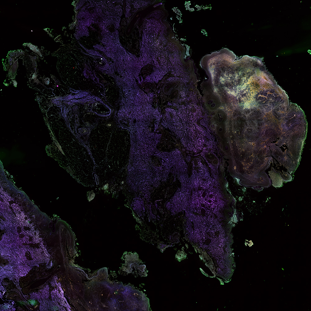 Stitched image of unstained human melanoma cryosection (single-photon setup; 20x, NA 0.8, FOV 9.2 mm) - overlay of 432 nm (magenta), 515 nm (blue), 595 nm (green) and 681 nm (red).