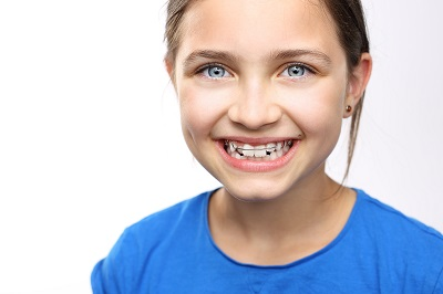 a kid smiling with braces