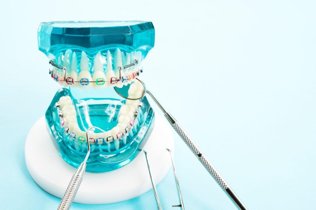 rubber braces