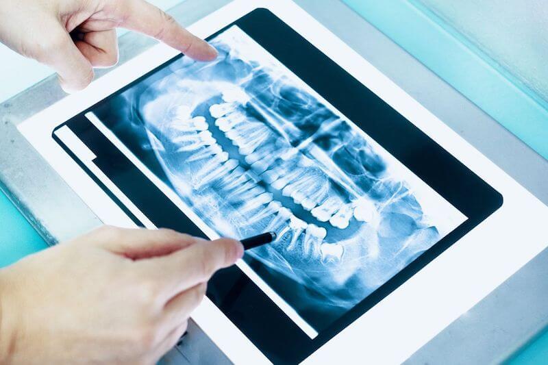 Virtual dental care