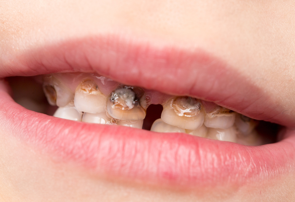 toddler with advanced children's tooth decay in baby teeth