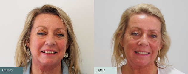 TL Dental Invisalign Before and After
