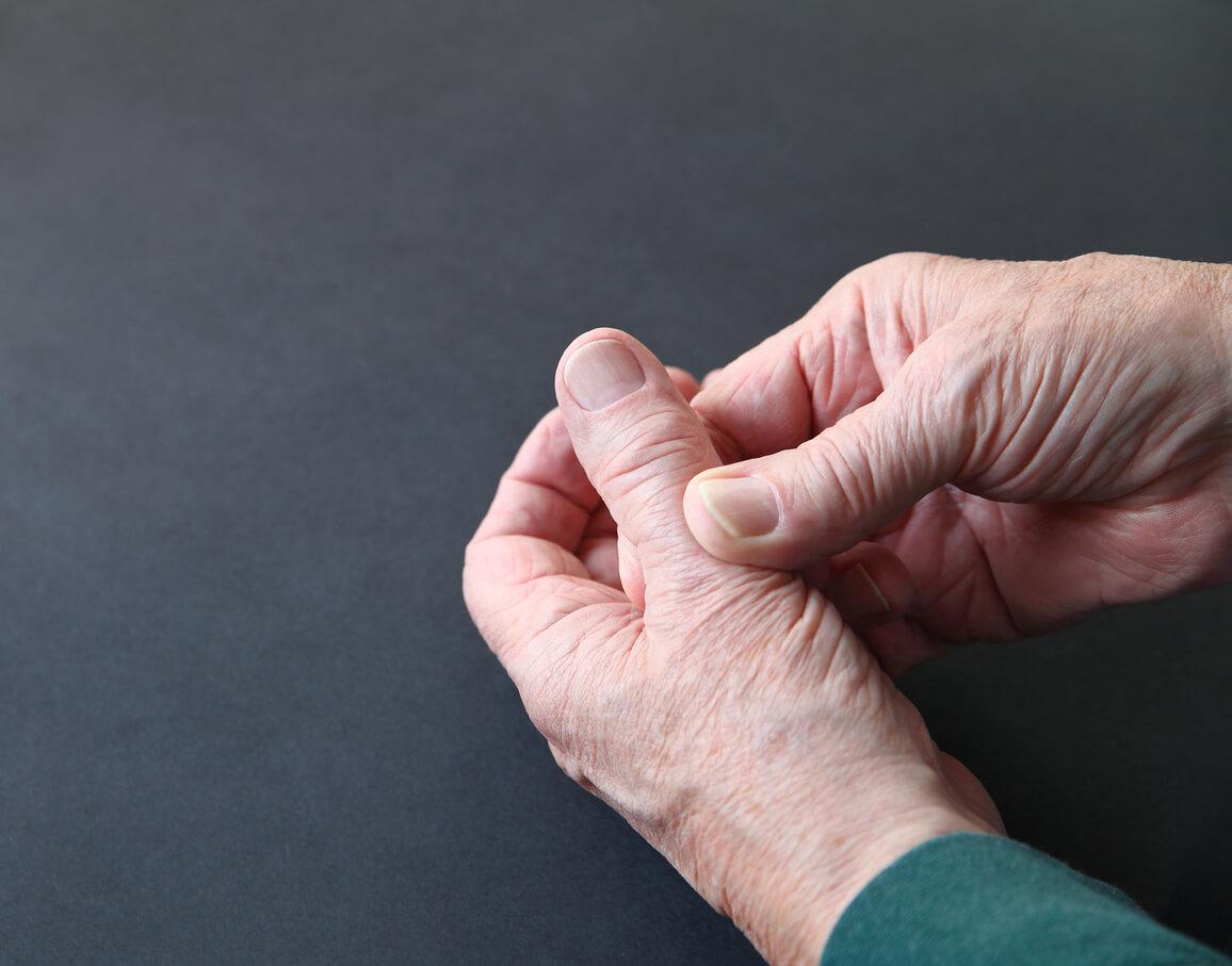 Osteoarthritis (OA) Thumb