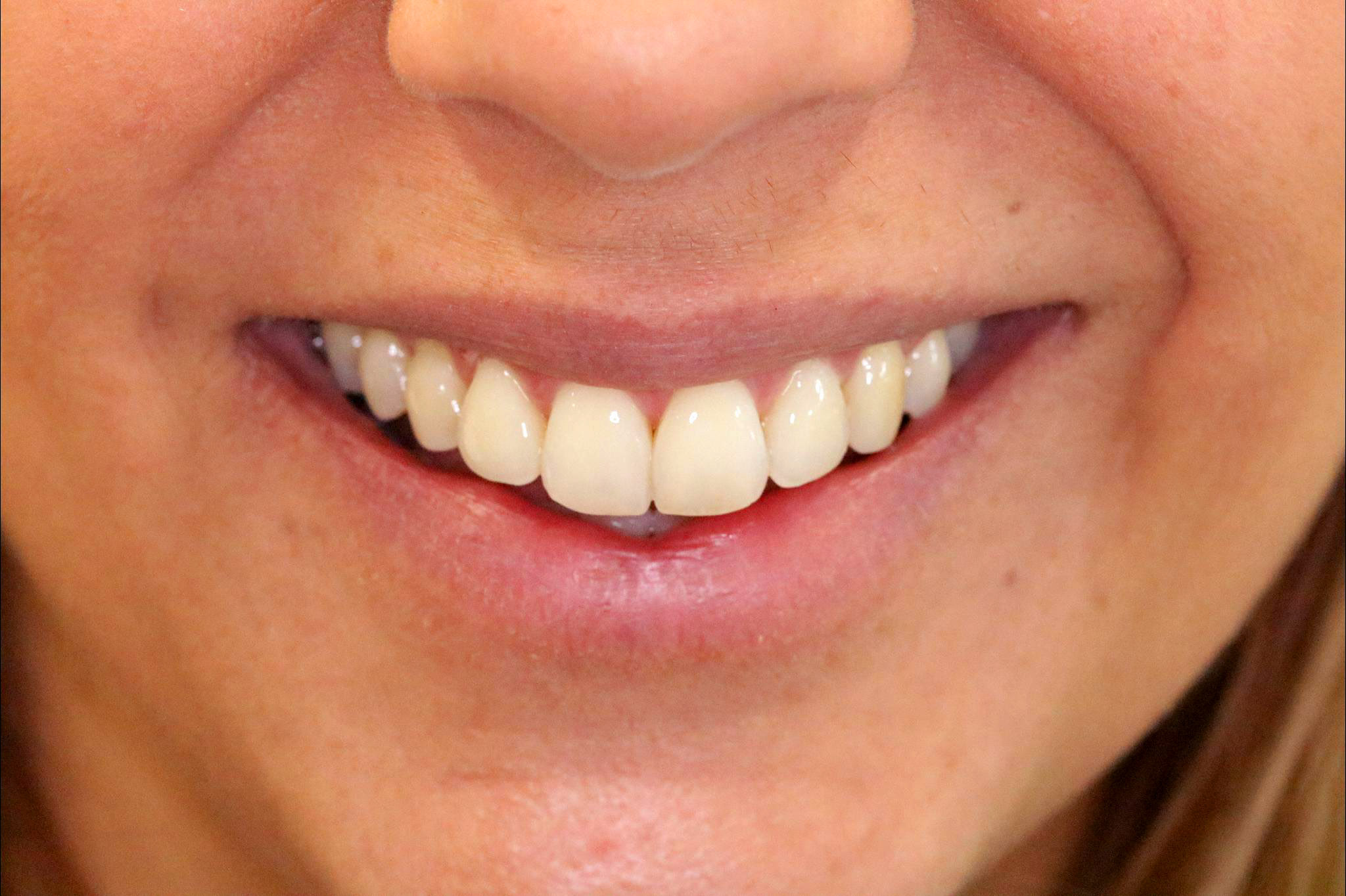 image of a patient after her invisalign treatment
