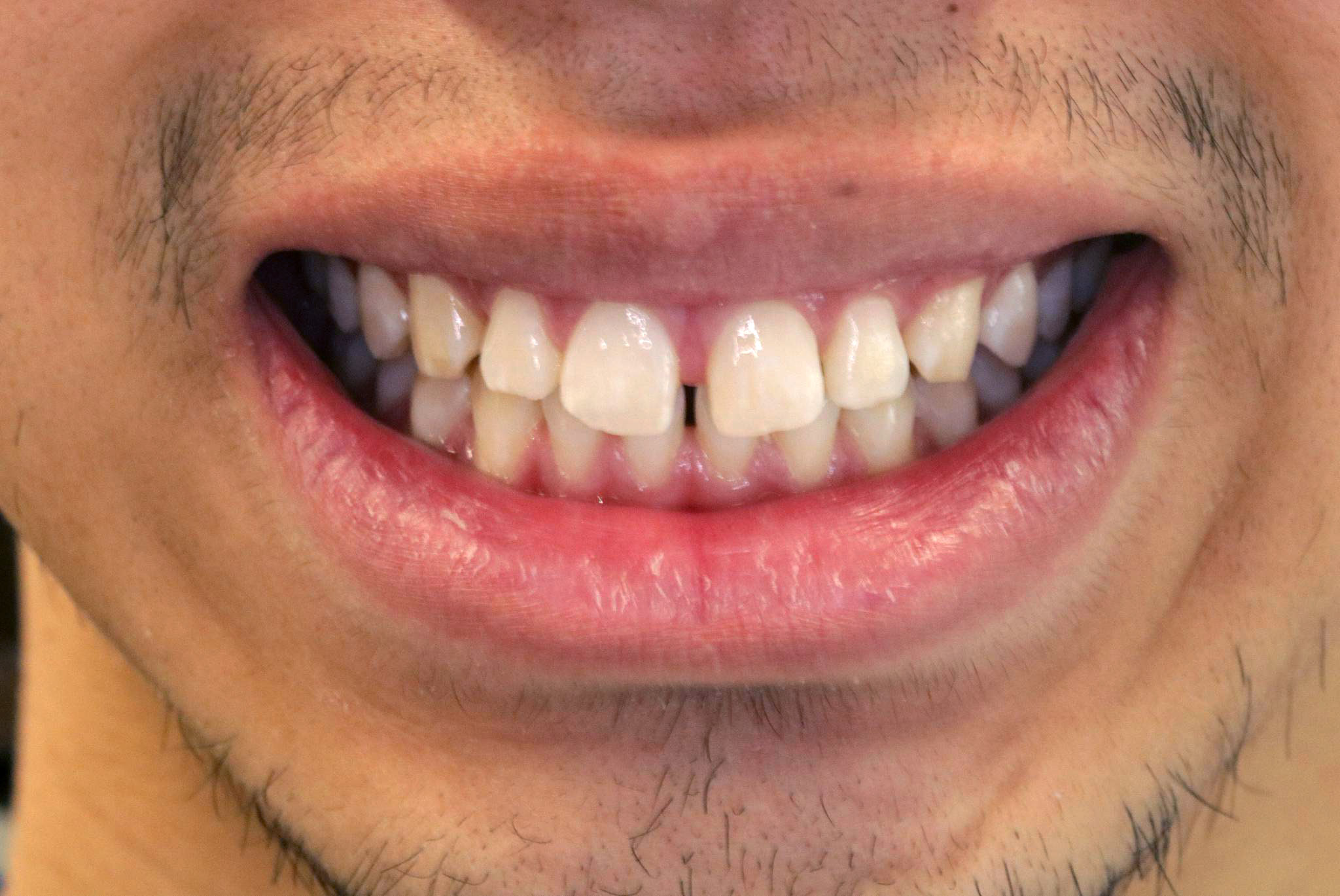 image of a delight dental spa patient before invisalign treatment
