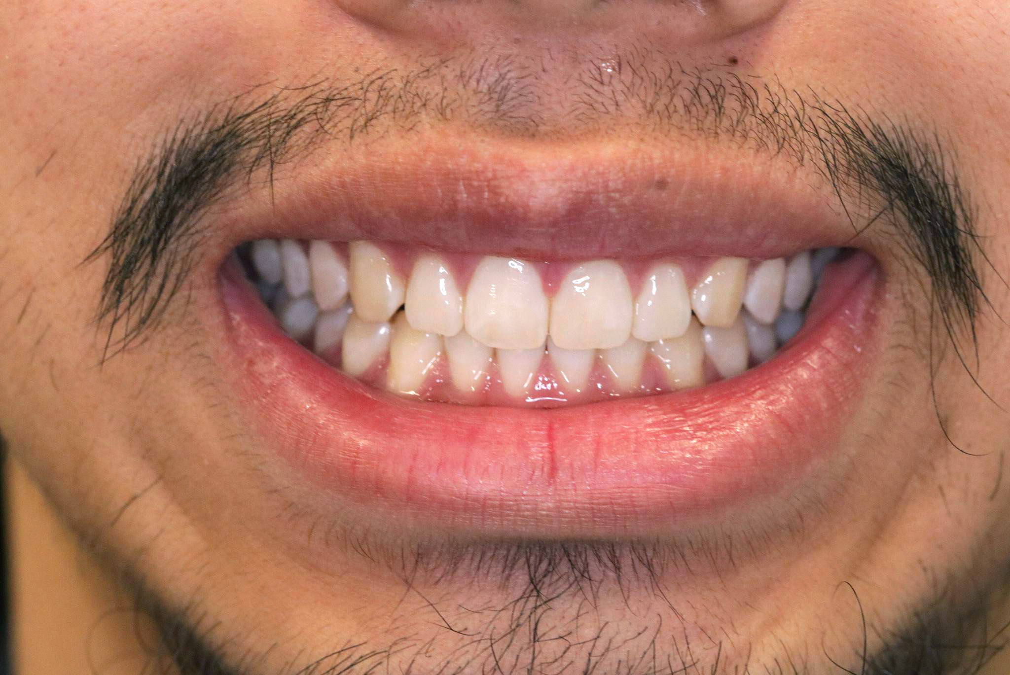 image of a delight dental spa patient after treatment