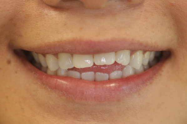 a patient before invisalign