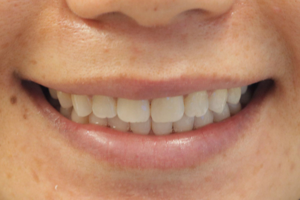 a patient after invisalign