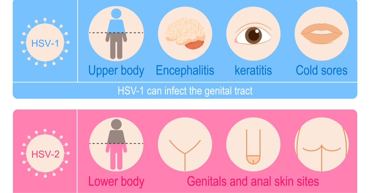 Herpes simplex viruses include two members of the human Herpesviridae family, Human alphaherpesvirus 1 and Human alphaherpesvirus 2.