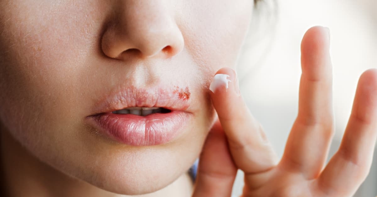 Young woman applying cold sore cream on lips