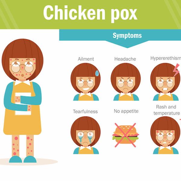 Chicken pox symptom vector.