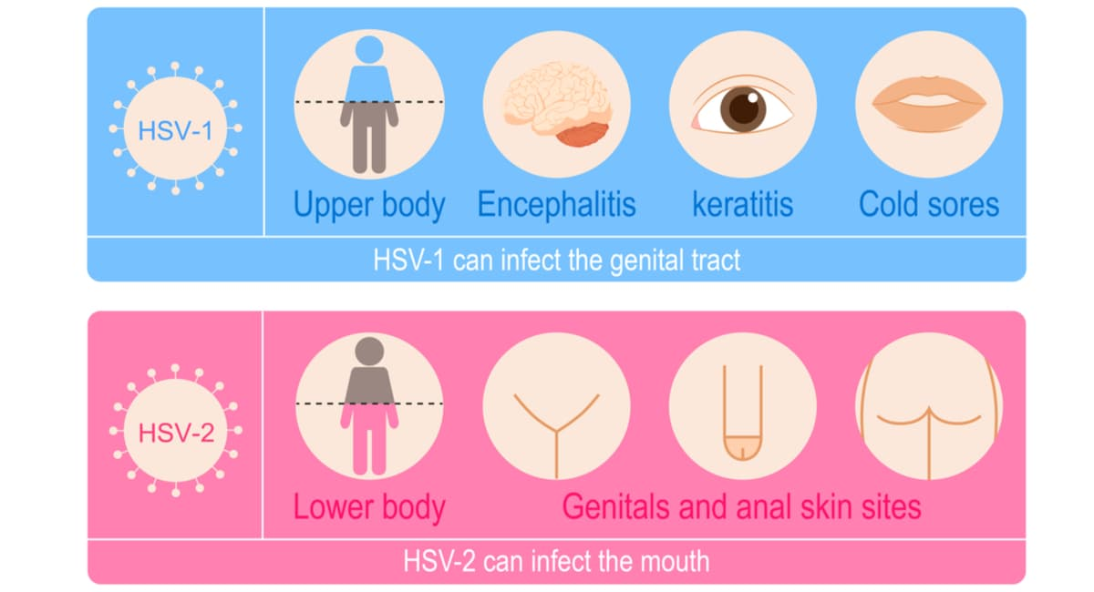 Vector illustration of Herpes simplex viruses