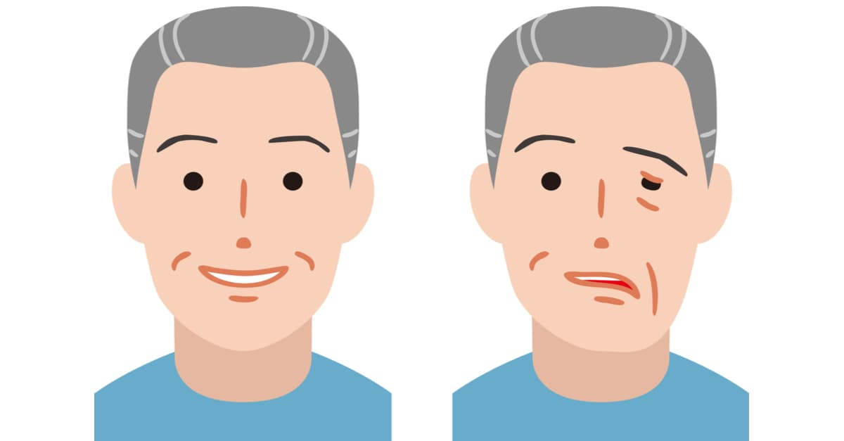 Facial paralysis can be temporary symptom of herpes