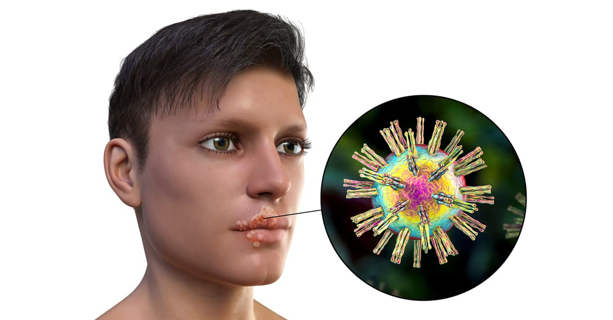 Man with herpes lesions making it more contagious