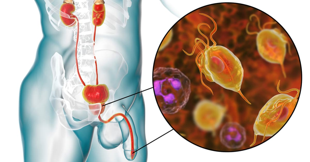The parasite which causes trichomoniasis lives inside the host