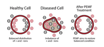Healthy cell, unhealthy cell and cell after PEMF use