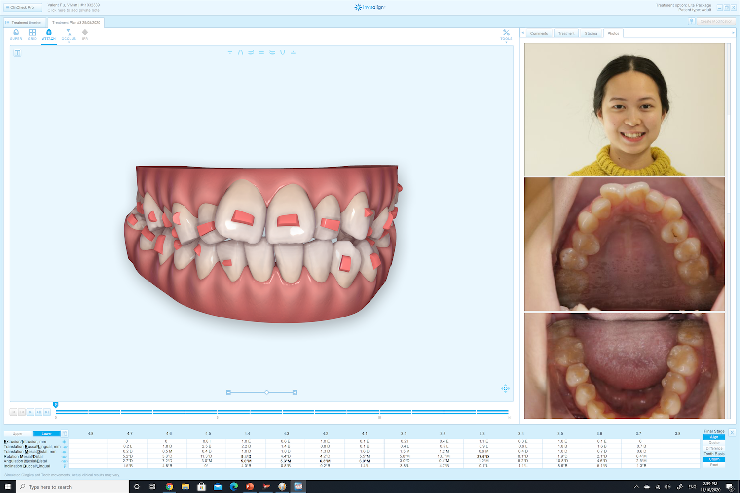 Special software that help monitor the progress of your invisalign treatment