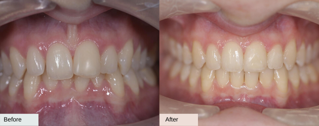 Before and after invisalign overbite