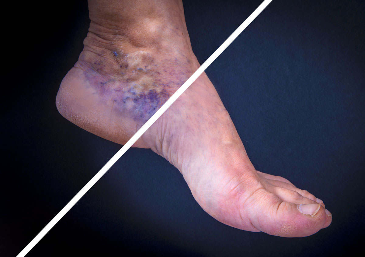 Varicose veins ankle before and after