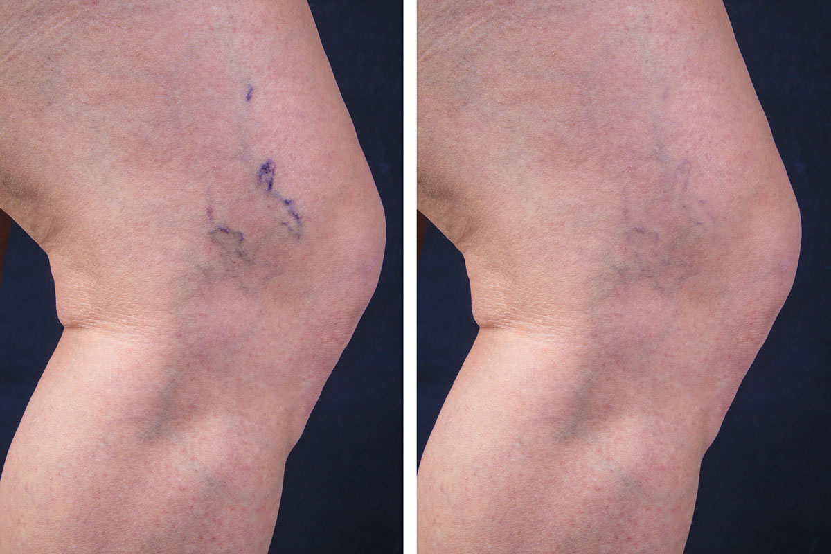 spider veins before and after