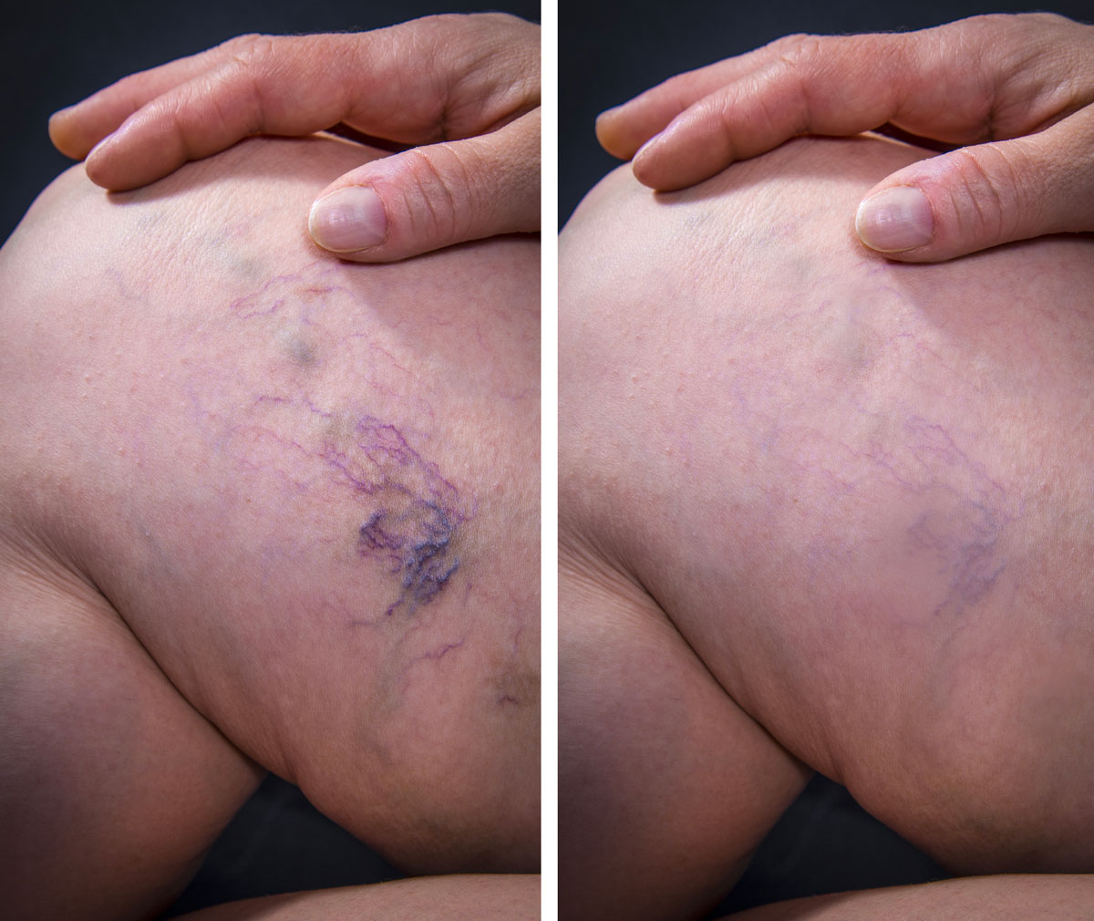 spider veins thigh before and after