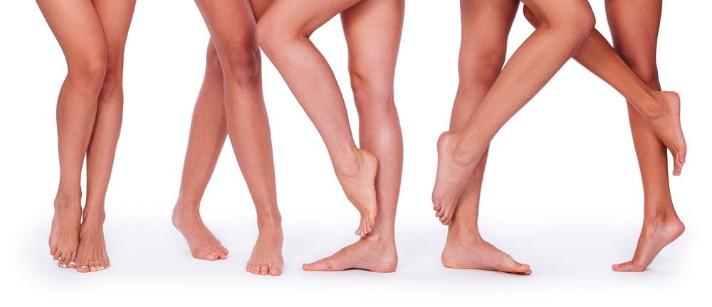 Dr Veins- five women legs