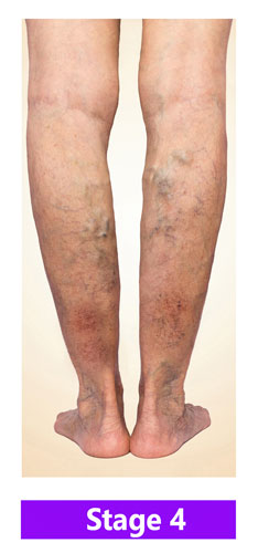 Stage 4 - Chronic Venous Insufficiency