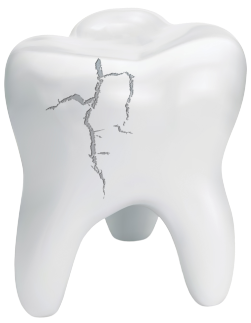 A cracked tooth diagram