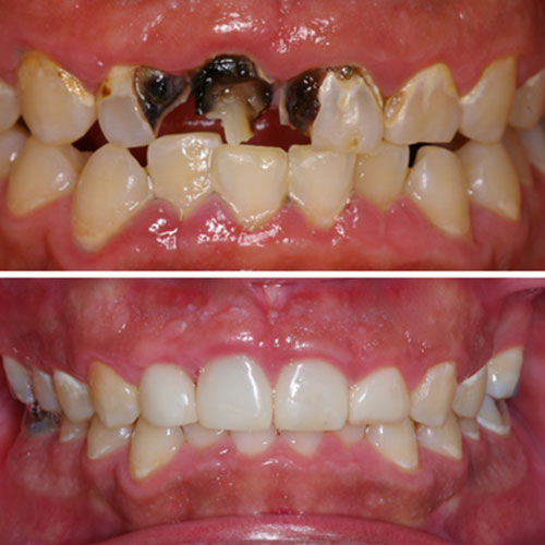 Before and after dental restoration fixing top and bottom teeth