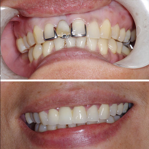 Before and after of dental restoration - front top teeth