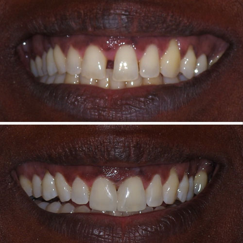 Before and after dental restoration, fixing front tooth gap