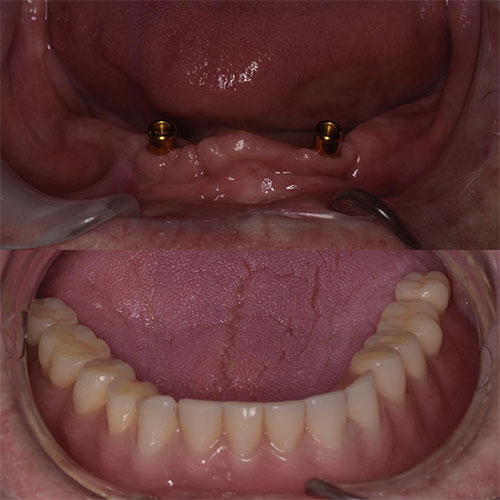 Before and after of denture implants