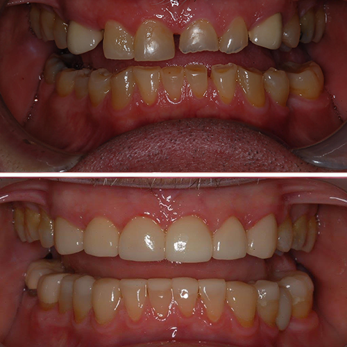 Before and after dental restoration top and bottom teeth, evening out and adding/enforcing chewing surface